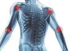 bekampa-artrit-med-dieten
