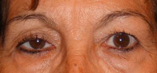 Förlusten av näringsämnen i huden gör att du får hängande ögonlock