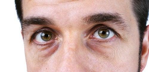 Mörka ringar under ögonen - 4 naturliga lösningar - Steg för Hälsa ecfd1ea46dfd7