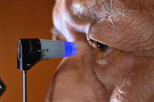 Naturliga sätt att förebygga glaukom