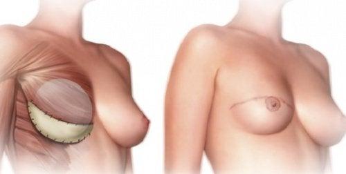 Mastektomi; Vad bör du veta innan?