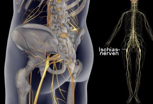 Rekommendationer för att lindra smärta i ischiasnerven