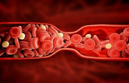 blodpropp i nacken