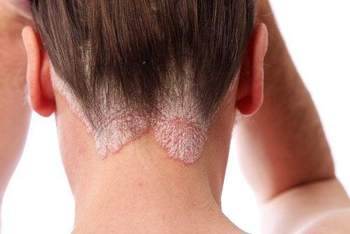 Psoriasis kan även drabba öron, ansikte och skalp