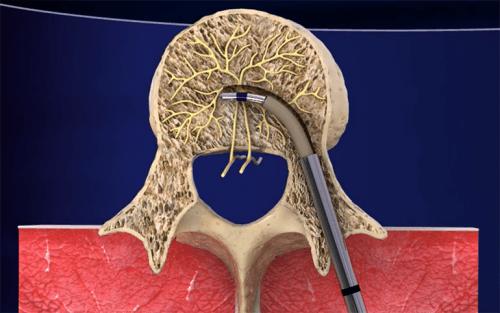 Intracept: Ny behandling för smärta i ländryggen