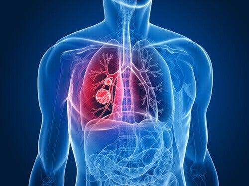kropp med lungcancer