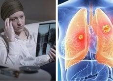 lungcancer-bland-kvinnor