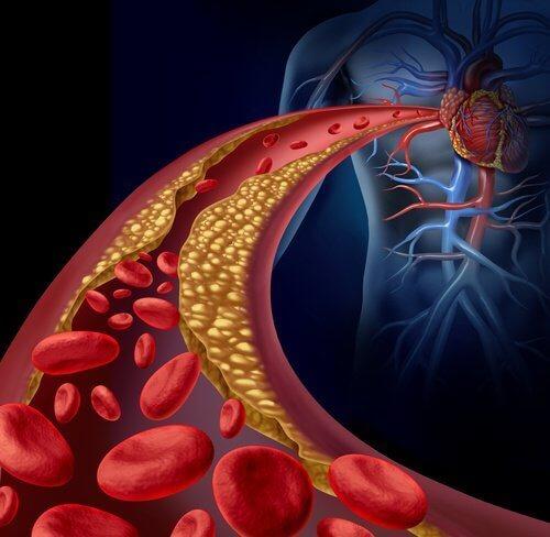 ofriska artärer