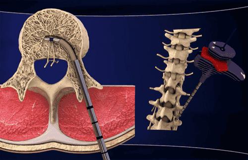 Upptäck en ny behandling för kronisk smärta i ländryggen