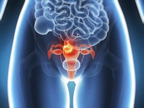 symptom-pa-livmoderhalscancer