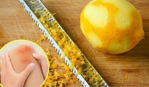 Citronskal