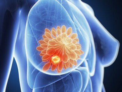 Ny metod för att ta bort bröstcancertumörer på 11 dagar