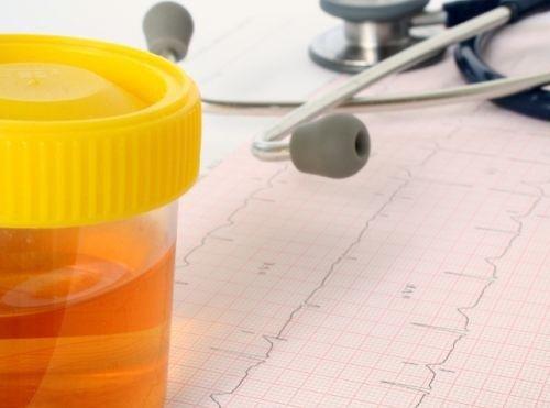 Förändringar i urin är tidiga tecken på kronisk njursvikt