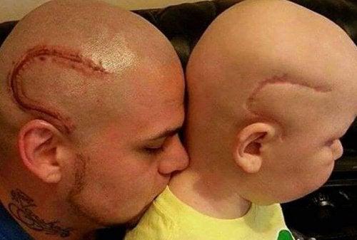 """""""Nu är vi likadana."""" Pappan tatuerade sonens cancerärr"""