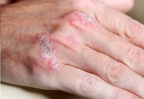 5 saker du borde veta om autoimmuna sjukdomar
