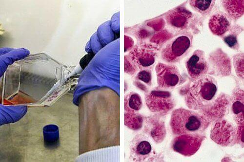 celler av bukspottkörtelcancer