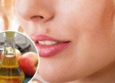 ta-bort-leverflackar-naturligt