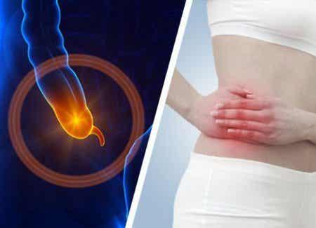 Tecken och symptom på appendicit