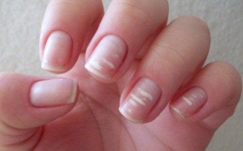 prickar på naglarna