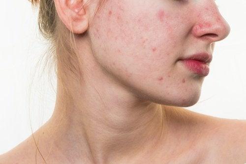 dålig hud i ansiktet