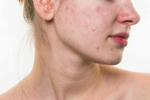 5 matvanor som kan förstöra ditt ansikte