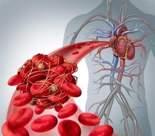 Höga kolesterol- och triglyceridnivåer kan leda till trombos