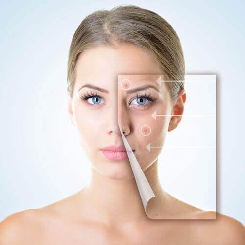 Problem med huden