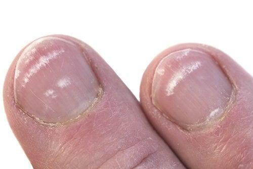 vita fläckar på naglar