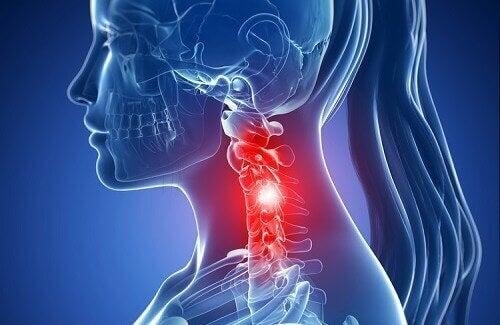 cervikal spondylos; symptom och naturliga behandlingar