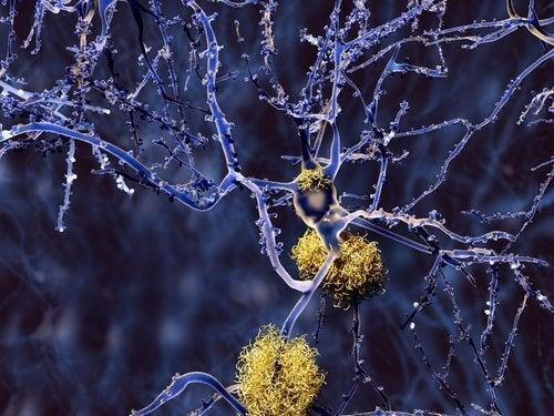 Demenssjukdomar som inte är Alzheimers sjukdom