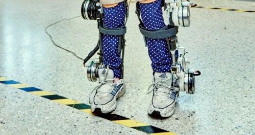 Exoskelett kan hjälpa handikappade