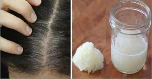 Lök- och honungskur för att förebygga håravfall