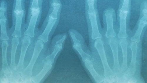 Händer i röntgen
