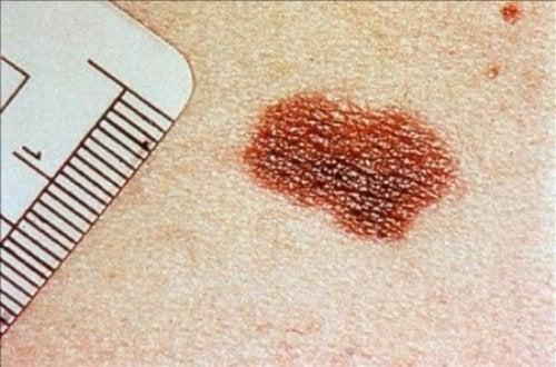 Tecken på hudcancer