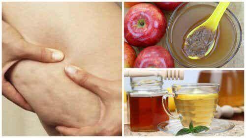 Bekämpa celluliter med honung och äppelcidervinäger