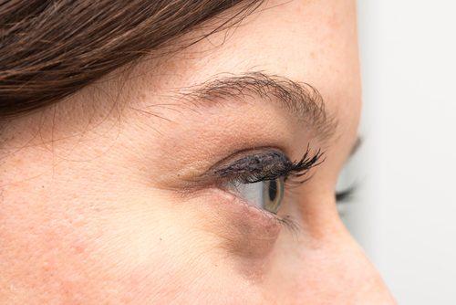 Varför du har påsar under ögonen & hur du behandlar dem naturligt