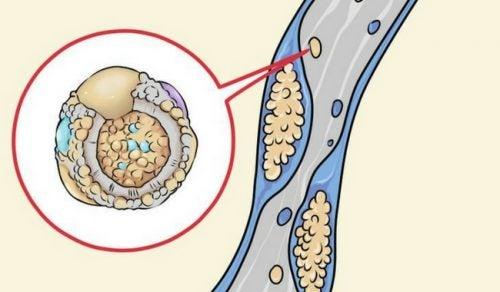 6 sätt att sänka kolesterolet i köket