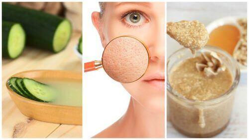 Att krympa dina porer: 5 naturliga huskurer