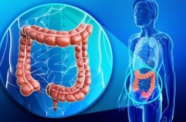 Det är många som påverkas av problem med tjocktarmen