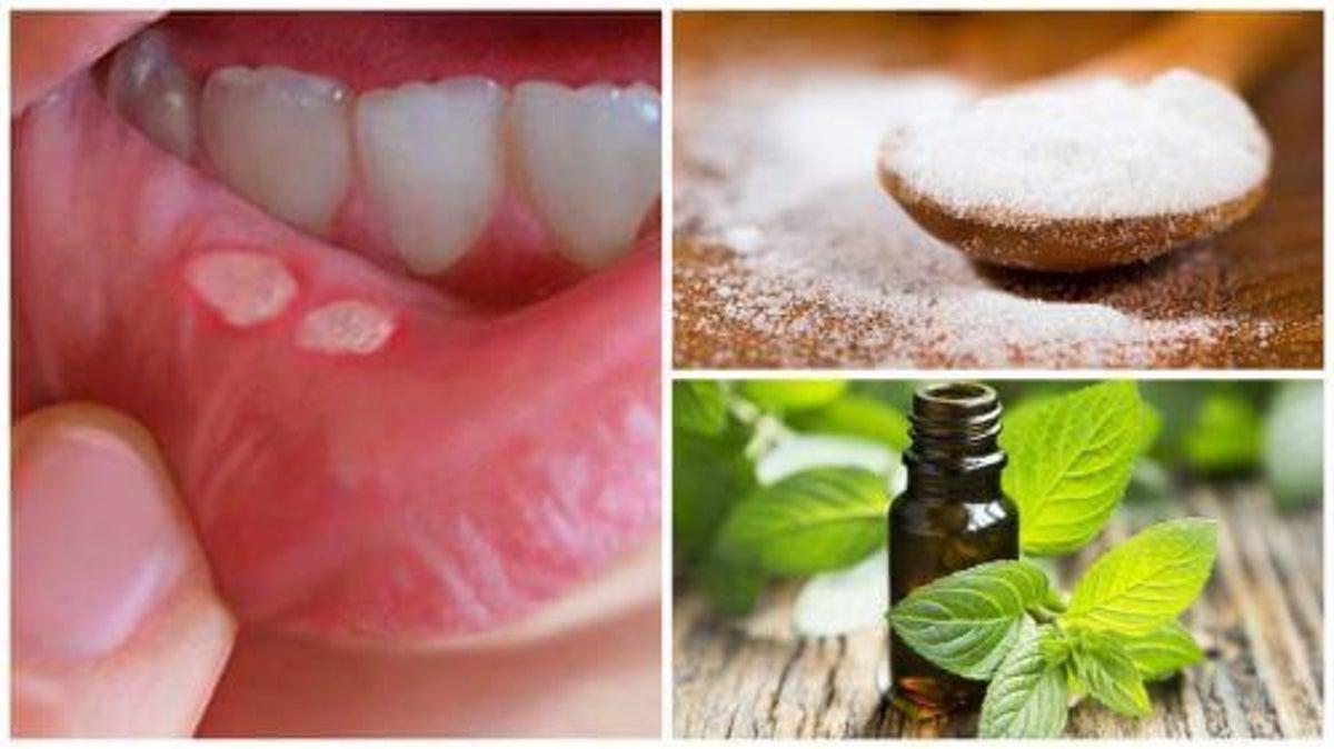 förkylningsblåsor på tungan huskur