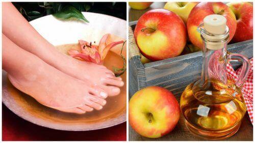 6 fördelar med att bada fötterna i vinäger