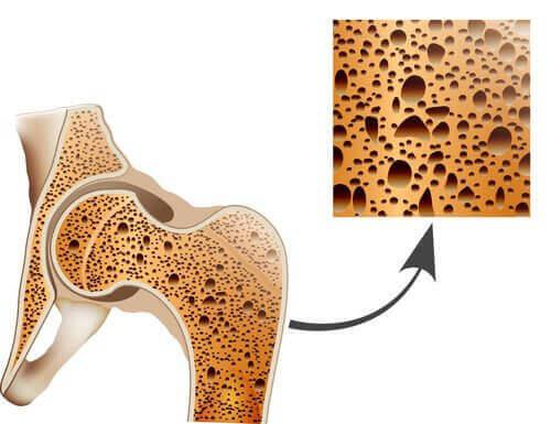 Osteoporos urholkar benen