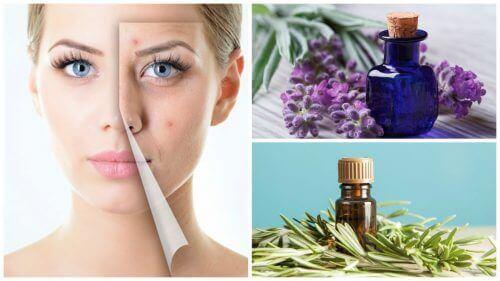 Behandla din akne med dessa 6 essentiella oljor