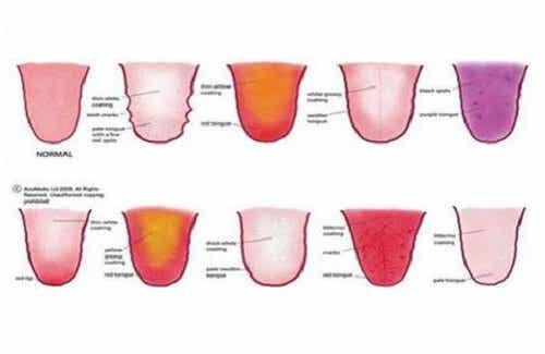9 saker din tunga försöker säga om din hälsa