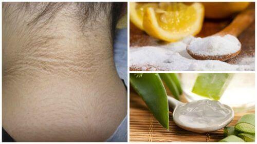 5 hudbehandlingar för att bleka mörka fläckar i nacken