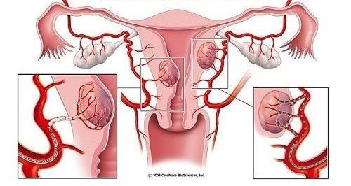 myom utanför livmodern