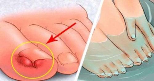 6 effektiva huskurer mot nageltrång