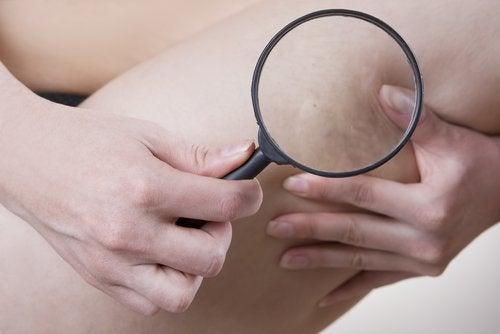 Celluliter på låret