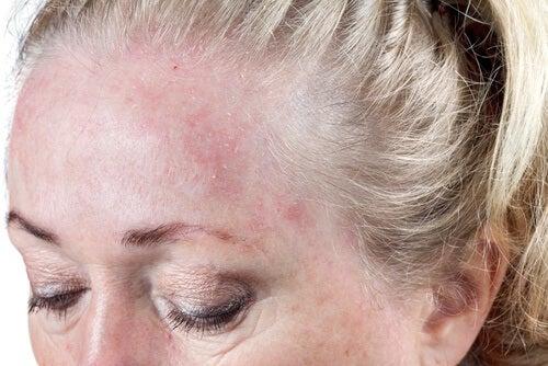 Att ha fuktigt hår när du sover ökar risken för hudinfektioner