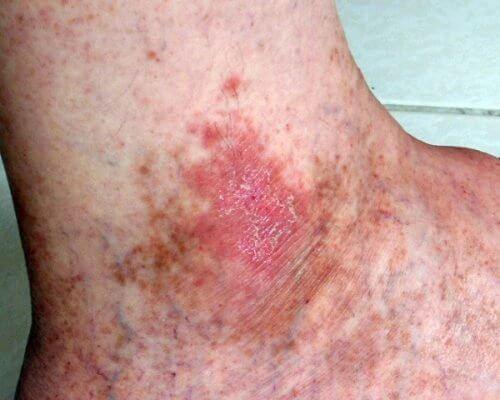 hudcancer symtom klåda